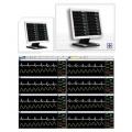 Центральная станция Bionet B-eye System