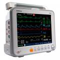 Монитор пациента iPM12